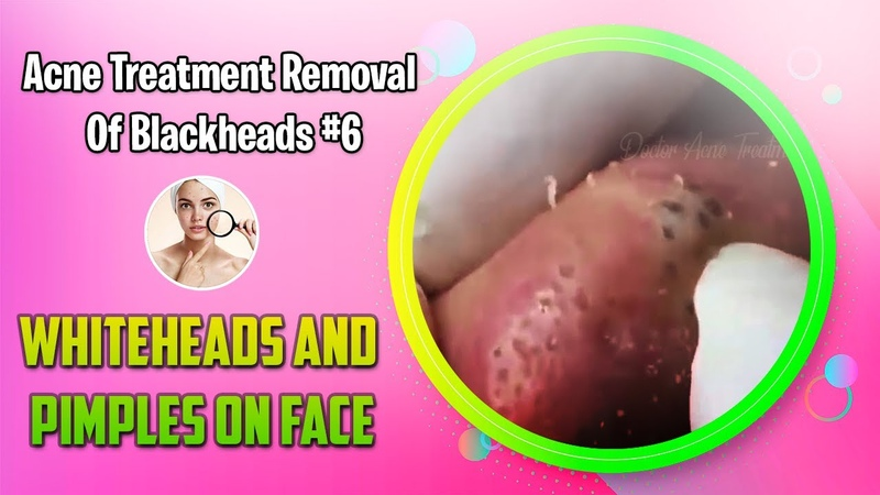 WOW WOW !! Pimple Popping Blackheads, Cystic Giant Acne , Whiteheads on The Face Acne Treatment6