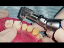 Tooth Preparation for Metal Crown Upper First Molar Стоматология