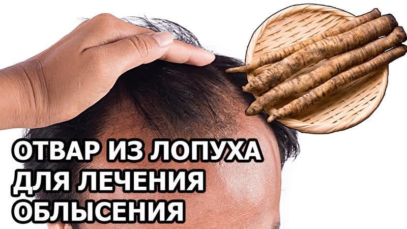 Отвар из корня лопуха для волос от выпадения | Лечение облысения корнем лопуха