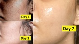 5 Days Skin Repair Close Large OPEN PORES, Remove Dark Spots, Anti Aging