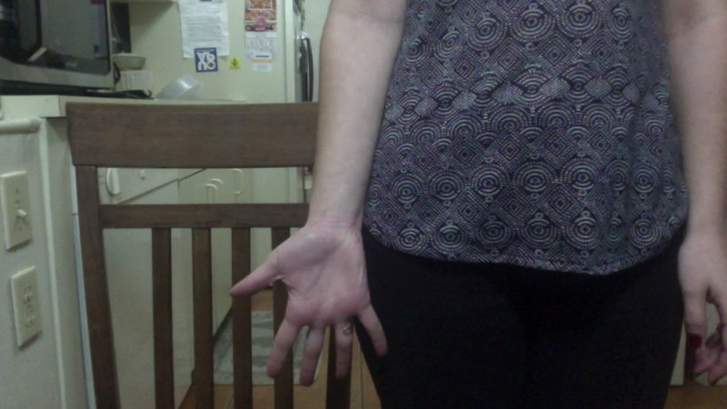Finger Flexion Extension Abduction Adduction and Forearm Pronation and Supination