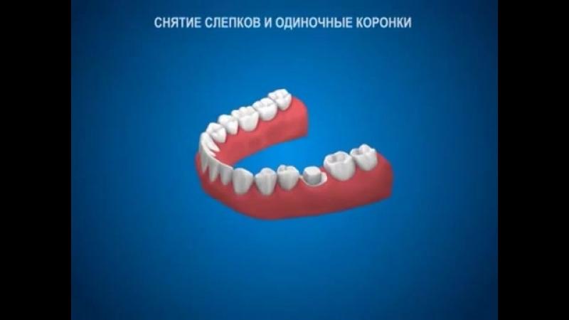 Коронка_на_зуб_-_протезирование.mp4