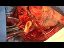 Heart Transplantation (Modified Bicaval Technique)