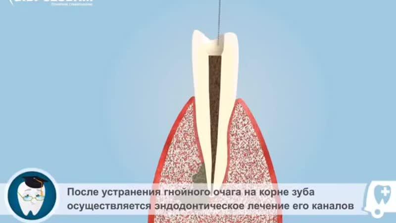 Сохранение ваших зубов наша задача