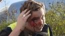 A️cte XX à Besançon : Honteux : Un policier fracasse le crâne d'un Gilet Jaune pacifique! (30/03/19)