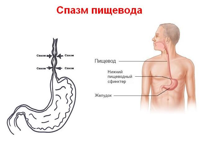 Попадание пищи из желудка обратно в пищевод