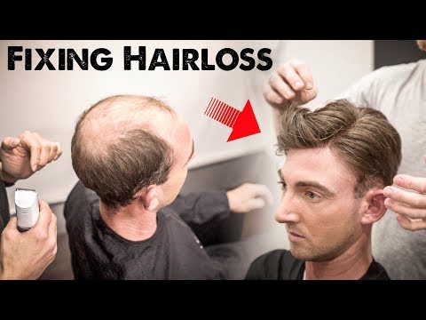 Mens Hairloss Treatment 2.0 | Amazing Hairstyle Transformation - Does it Work | BluMaan 2018