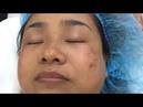 Điều trị nám Melas Reno lần 4 tại TMV Đông Á