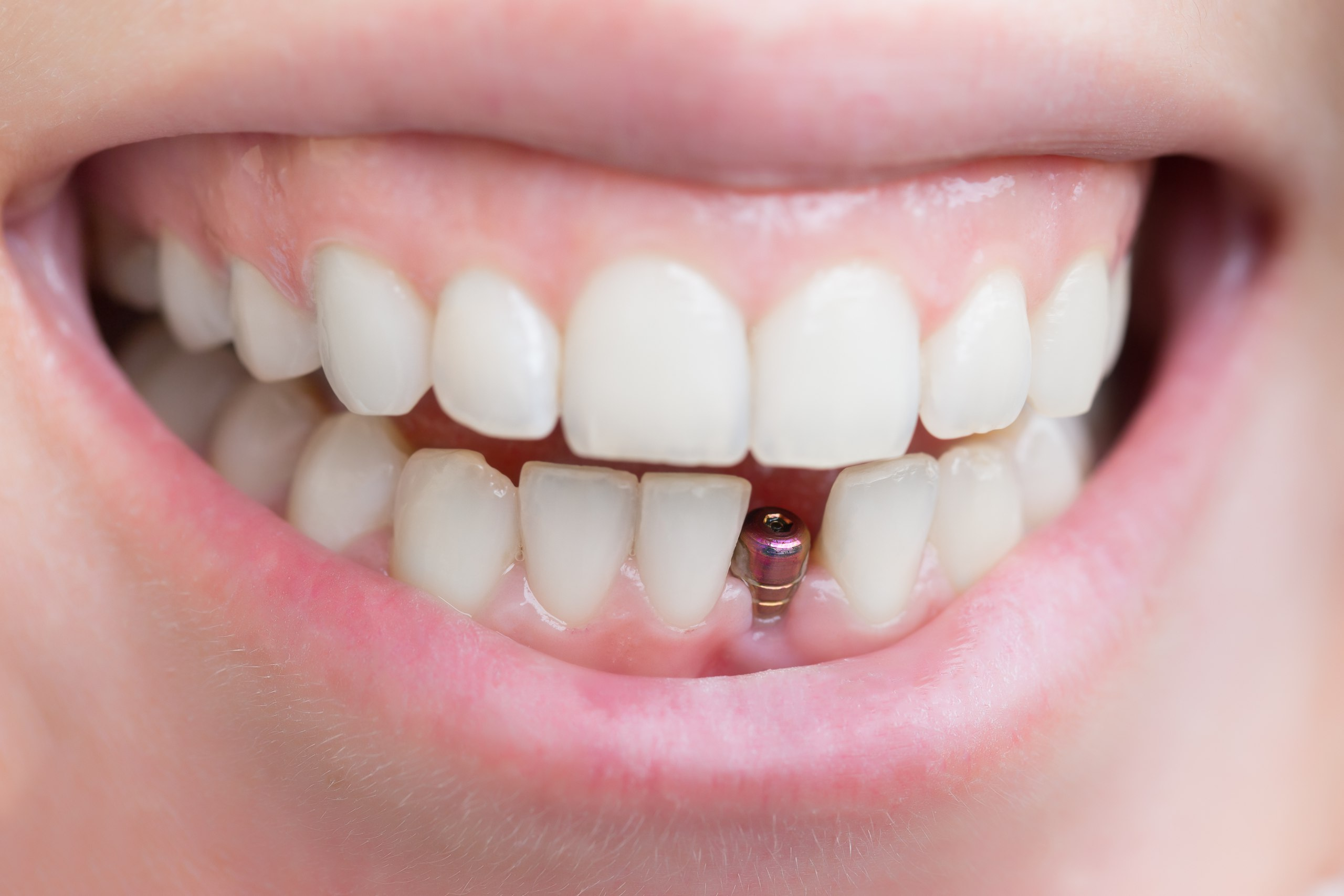 Перед установкой зубных имплантов