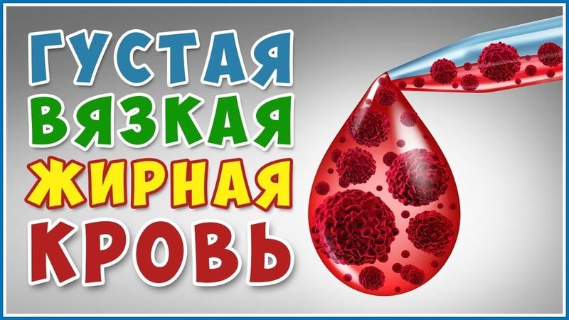 КРОВЬ густая вязкая жирная Как разжижать густую кровь без лекарств Гипертония Фролов Ю А
