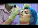 Процедура Диспорт в центре лазерной косметологии Нью Лайн Люкс