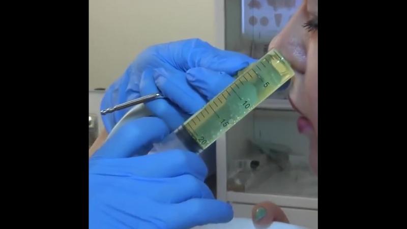 Промывание носа.mp4