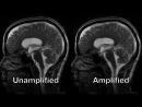 Phase-based amplified MRI aMRI