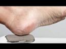 Listerine Vinegar Foot Miracle Soak Recipe for Toenail Fungus Dead Skin Calluses Cracked Heels