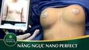 Nâng Ngực Nội Soi Có An Toàn Không? - YouTube