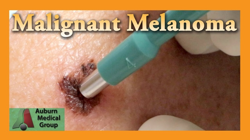 Malignant Melanoma Punch Biopsy | Auburn Medical Group