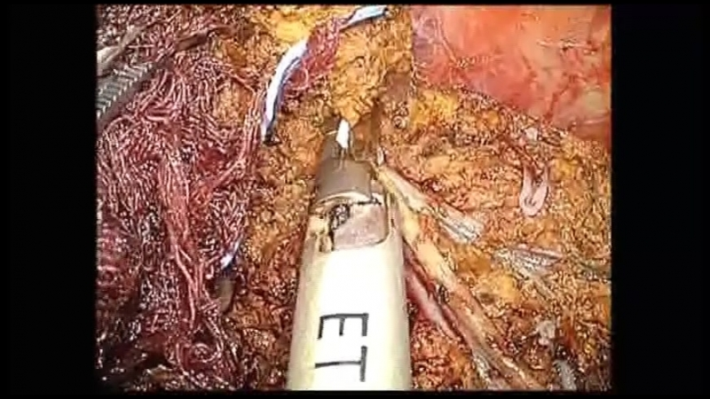 Laparoscopic right hemihepatectomy using the caudate lobe first approach step 4 (division of the liver parenchyma on the cranial