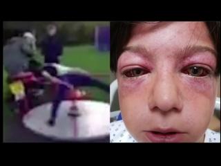 Глаза вылезли из орбит: школьник стал жертвой жуткого трюка из Youtube
