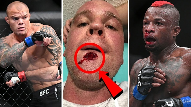 Итоги UFC Fight Night 134 Маурисио Шогун Руа - Энтони Смит