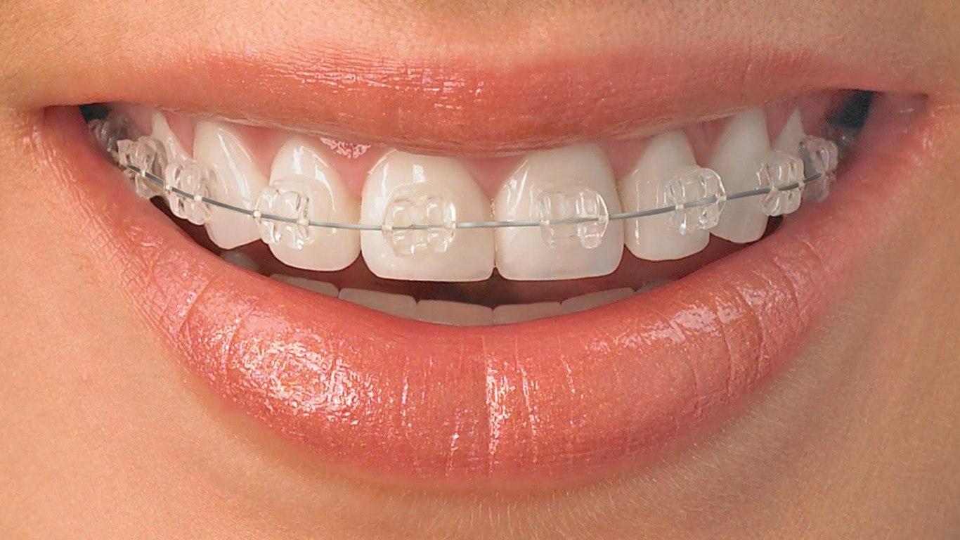 Каковы различные типы ортодонтии взрослых?