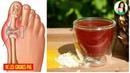 Une ancienne astuce pour éliminer les cristaux d'acide urique du corps et prévenir la goutte