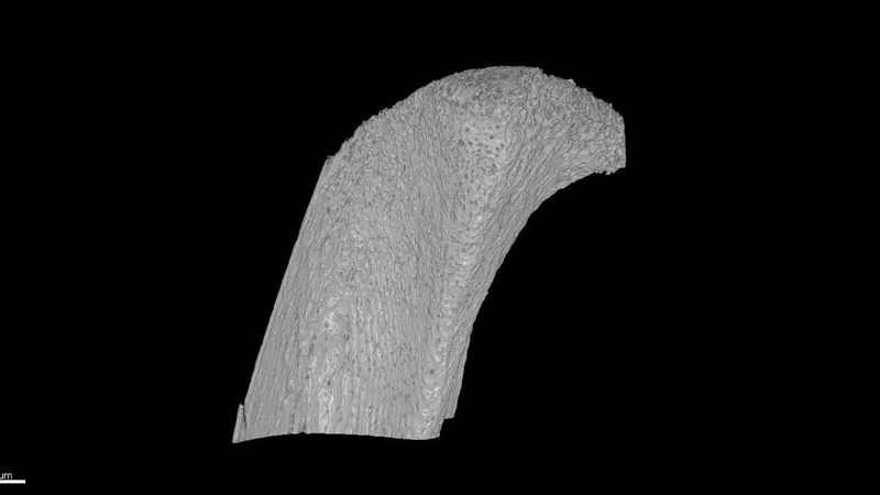XRM imaging of bone canals