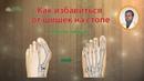 Как избавиться от косточки или шишки на большом пальце стопы Hallux Valgus