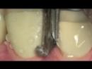 Препарирование под коронку. Автор Гаджи Дажаев. Ортопедическая стоматология.