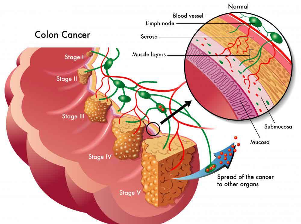 Для скрининга рака толстой кишки можно использовать сигмоидоскопию или колоноскопию