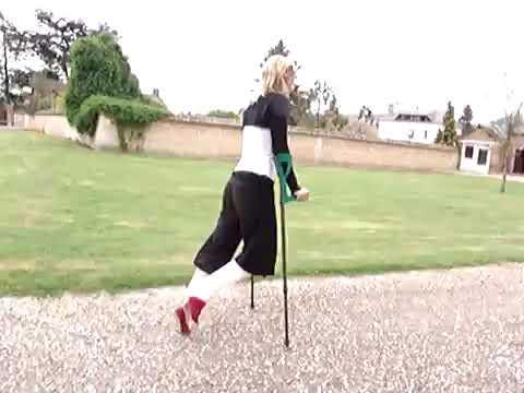 Blond women with leg cast SLC