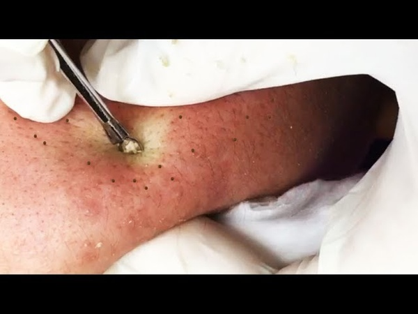 Removal Blackheads and Whiteheads for a Man - How To Remove Acne Easy (Part 05)