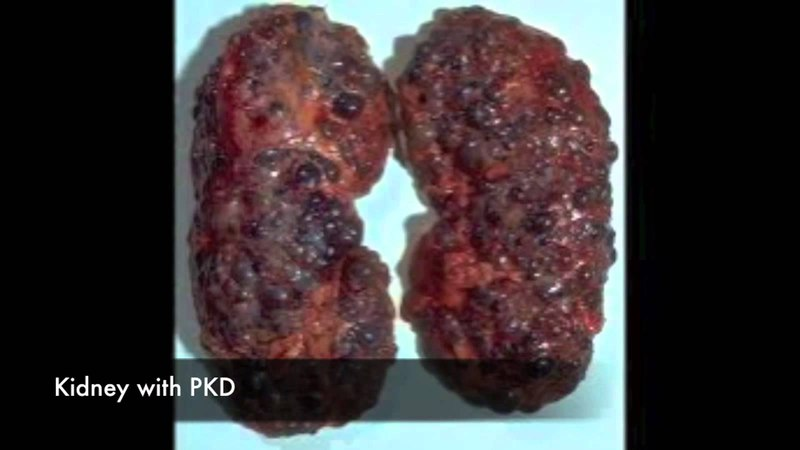 Polycystic Kidney Disease - Treatment, Symptoms Causes
