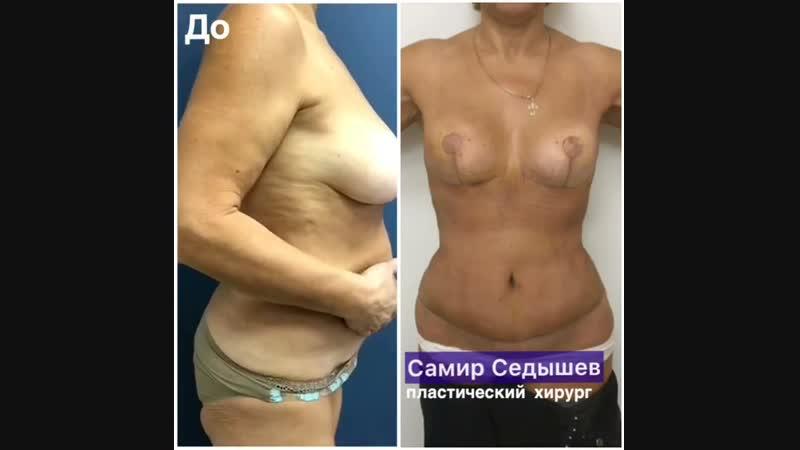 2 недели назад я провел комплекс MAMAplastic: ✅классическая абдоминопластика с ушиванием диастаза и переносом пупка, ✅липосакци