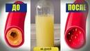 Вот как очистить кровеносные сосуды от холестерина всего за 40 дней без единого лекарства.