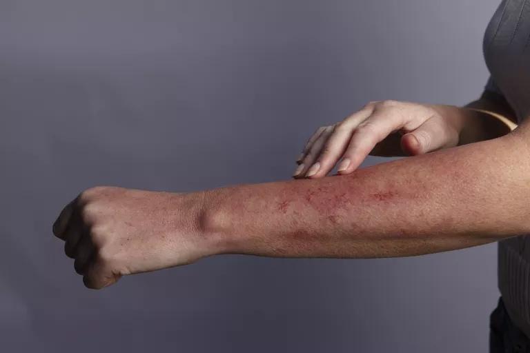 Современные методы лечения аллергии у взрослых