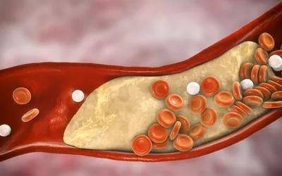 Наконец, общий холестерин включает количество триглицеридов. Триглицериды - это другой тип жира, который может накапливаться в организме.