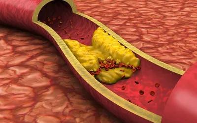 Высокий уровень холестерина - это состояние, которое возникает, когда уровень холестерина в крови повышен достаточно, чтобы вызвать проблемы со здоровьем, такие как болезни сердца.