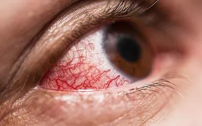 Травмы головы и глаз могут вызвать проблемы со зрением.