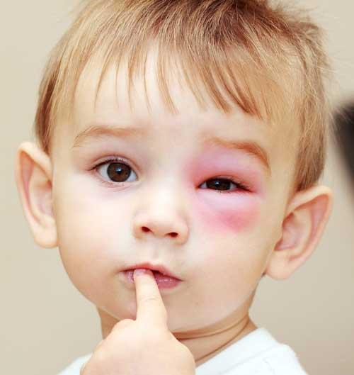 отек глаз после травмы