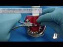 MOLARS EXPANSION WITHOUT TORQUE Ортодонтия