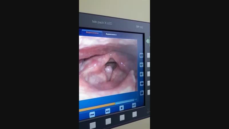 полипы в голосовой складке