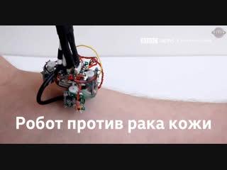 Робот против рака