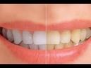 7 formas sencillas de blanquear tus dientes de forma natural en casa