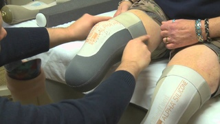 Living with Limb Loss: What Amputees Can Expect During the First Six Months Post-Surgery