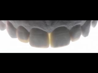 Direct Anterior Composite Resins