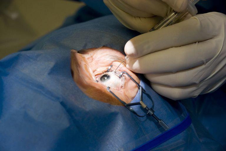 Что вызывает катаракту?