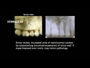 Внутриротовая рентгенография Анатомия