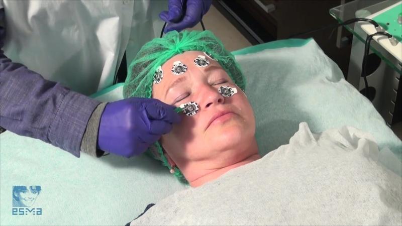 Нейростимуляция лица на аппарате ЭСМА Микроток