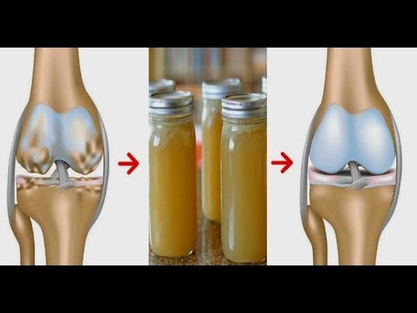 ★Лечение суставов ЖЕЛАТИНОМ и лимонным соком. Кости и суставы больше не тревожат.