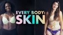 5 Strangers Get Undressed and Talk About Their Skin